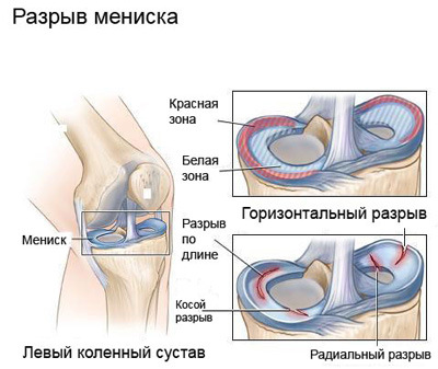 Blocade liigendi artroosi