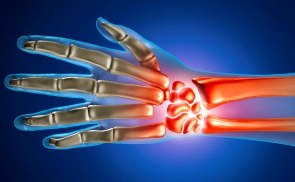 Parast nakkusliku artriidi liigeste Artriit Susta
