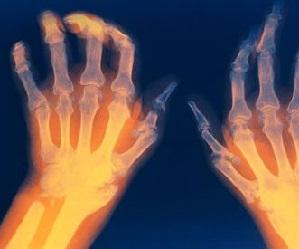 Esimese ola liigese artroos Sorme liigese vigastus kaes