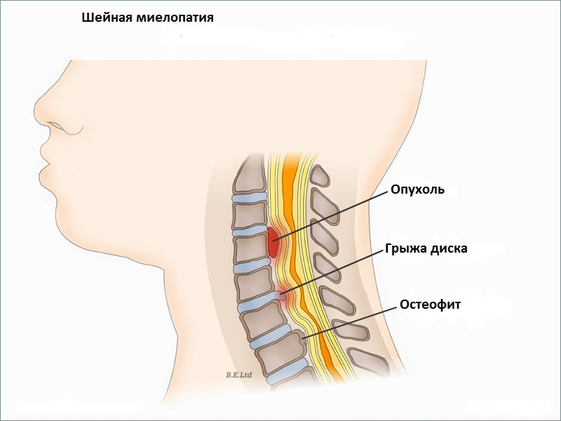 Artroosi idaravi