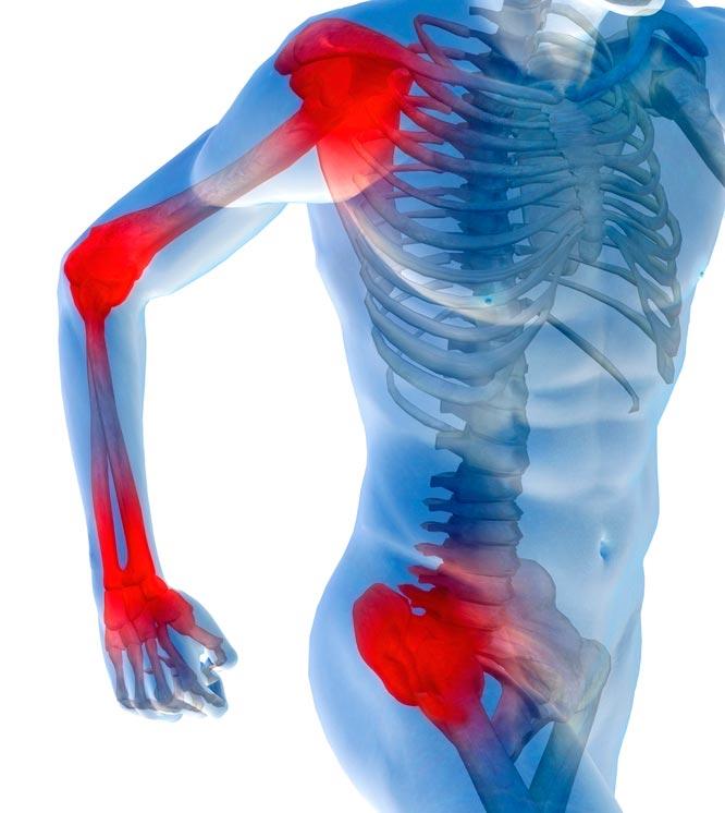 Artrosi kontsad ravi