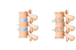 Mida teha valusid sormeotste liigestes Osteokondroosi valjavool ja geelid