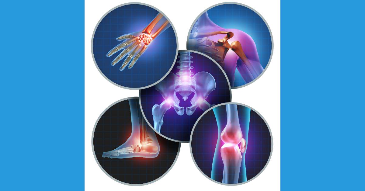 Mida votta haigetega liigestes Artroosi kaasaegne ravimeetodid