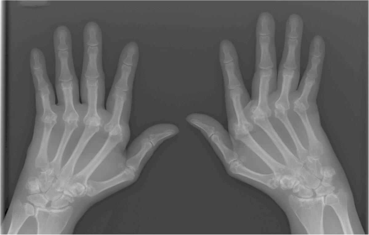 Poletik sormede liigeste kaes Miks kaed haiget