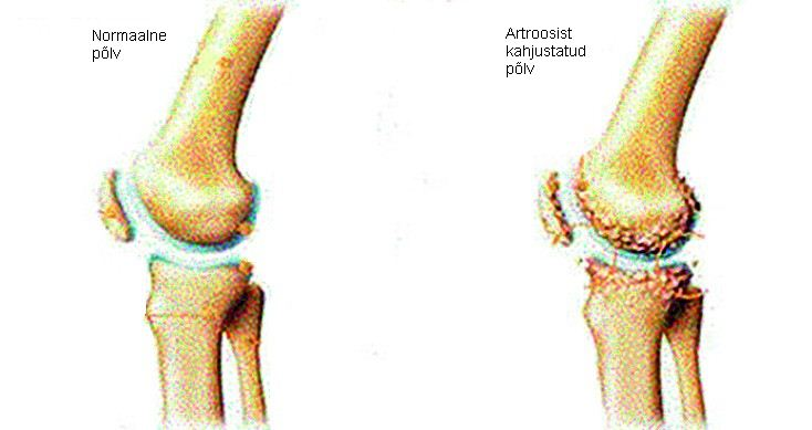 Sorme liigese artroopia parast