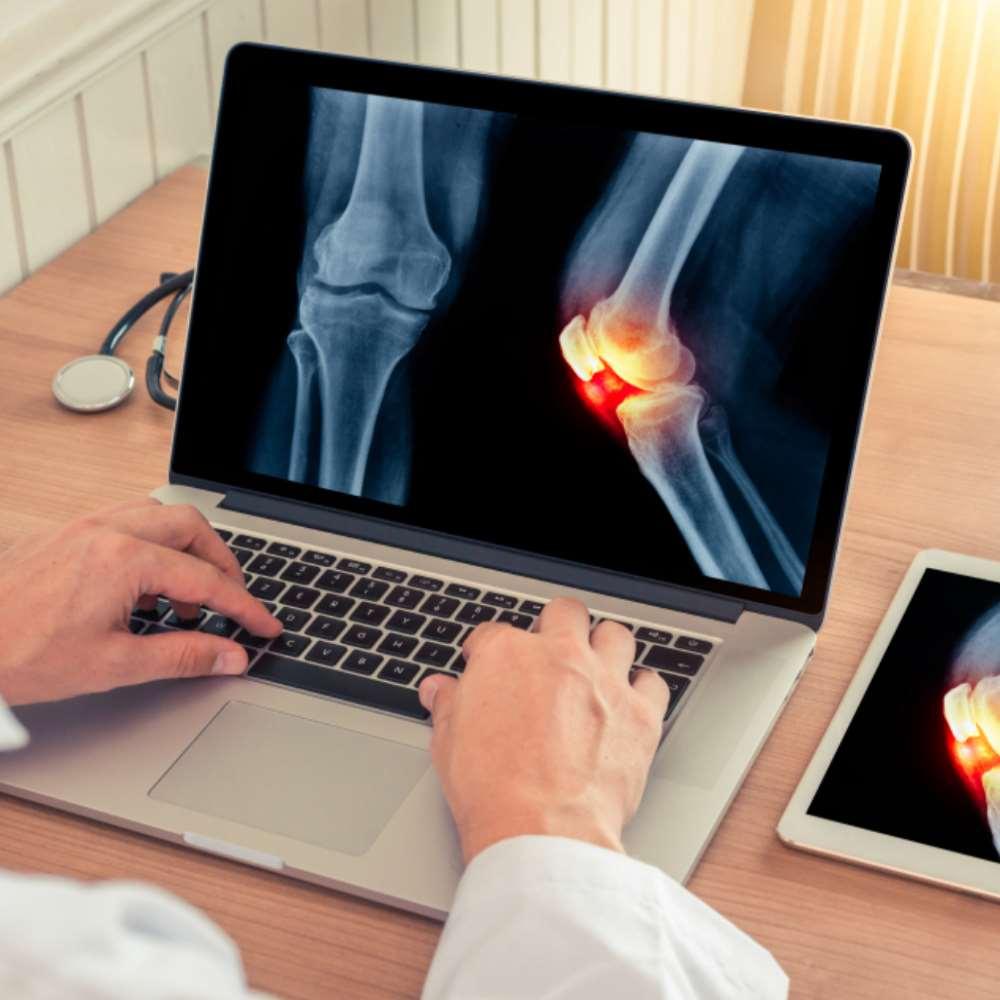 Muutused liigestes artroosi ajal