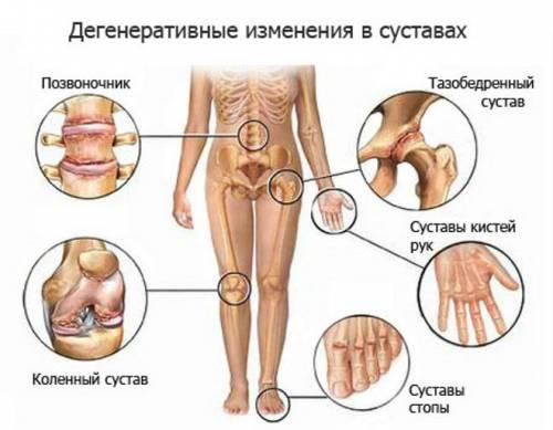 Crunch koik keha liigesed pohjustada ravi Mazi leevendada valu liigestes