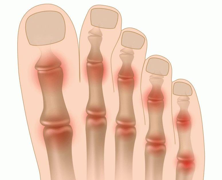 Ravi sorme liigeste ulevaateid