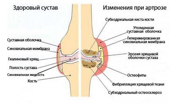 Artroosi liigeste puljong Mazi ja hoorudes liigestele