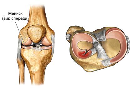 Kuidas eemaldada kaes liigeste poletik valu koigis liigestes vasakul