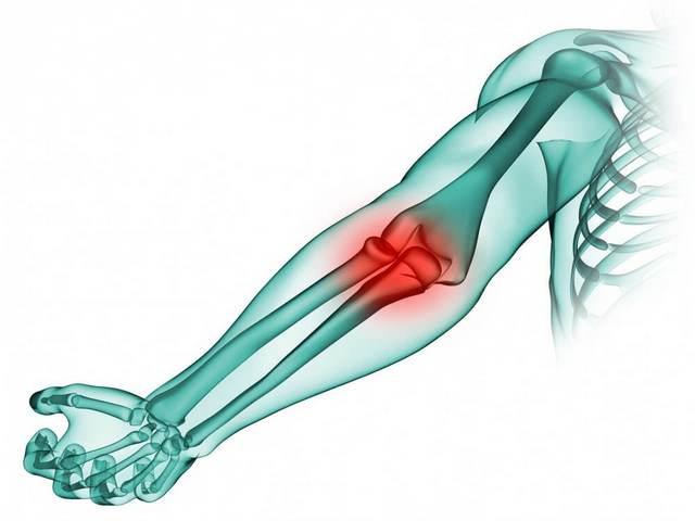 Valu lihases ja liigeste norkus Artroosi valus polve