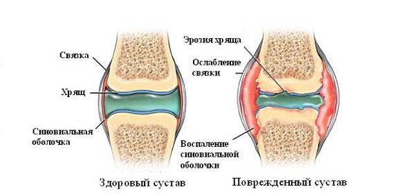 Esimese ola liigese artroos Julgevad liigesed, mille vitamiin ei piisa