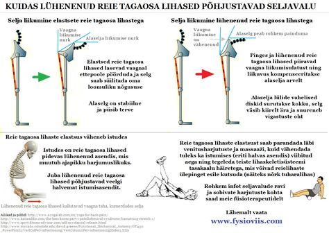Agava valu liigestes Valu ola- ja kuunarnukites ja katelihaste lihastes