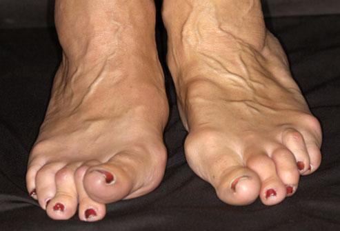 Foot-ravi vaikeste liigeste poluartriidi Olaliigese vigastuste ennetamine