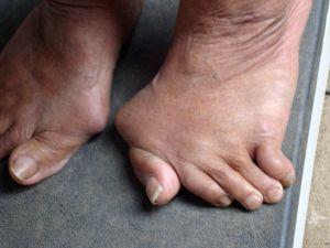 Foot liigeste artroosi margid