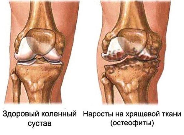 Inimeste artroosi raviks