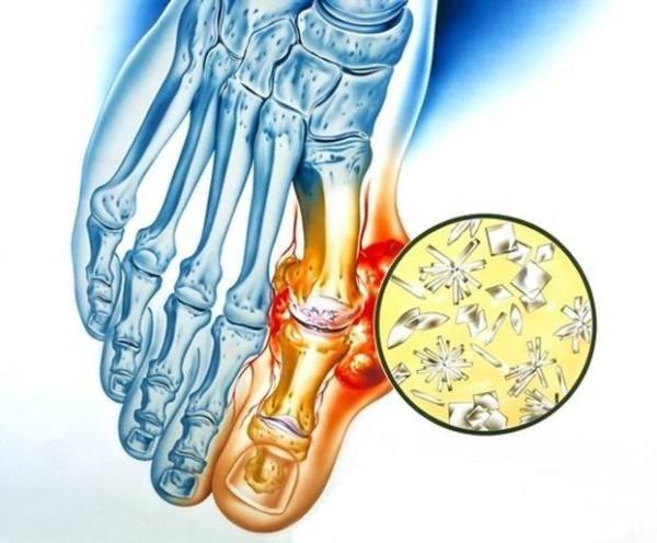 Inimeste viis liigeste raviks Liigeste loopia artroos