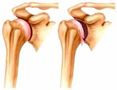 Jalgade keskosakonna liigeste arthroosi II etapp Kui konjunktiviitliigendid