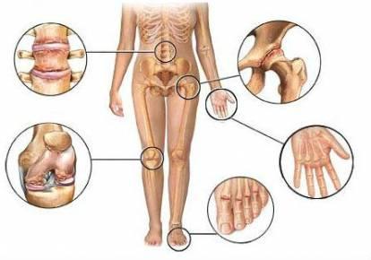 Kaasaegne meditsiini liigeste ravi