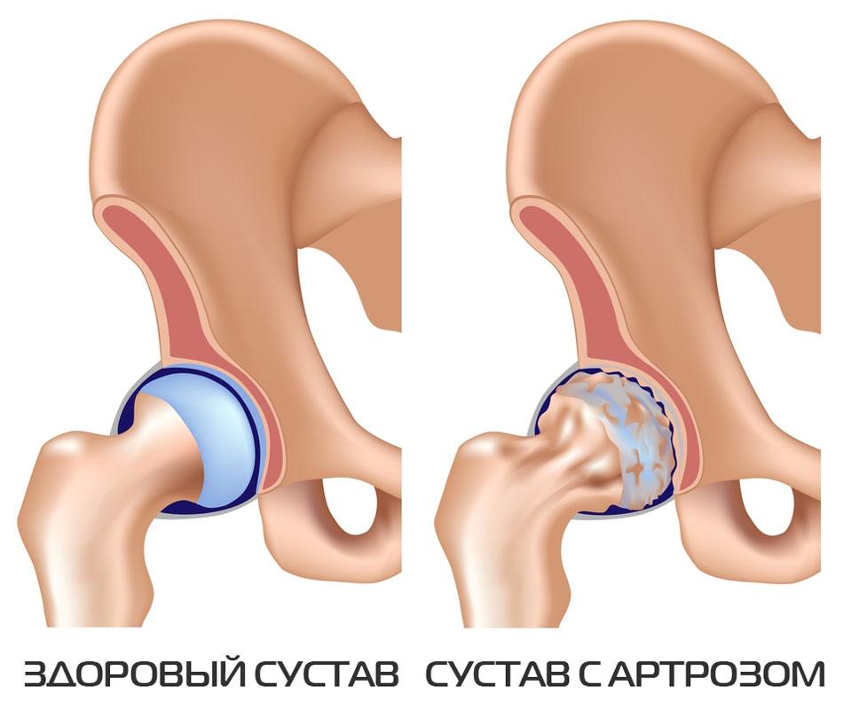 Kaasaegsed vahendid artroosi raviks