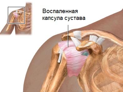 Artrosi apteegi ravi