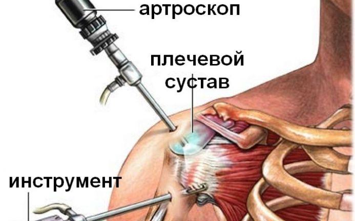 Folk meditsiini retseptid valu liigestes Inimeste viis liigeste raviks