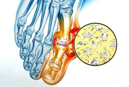 Kuidas eemaldada poidla kiire poletik lihashaiguste liigeste ravi