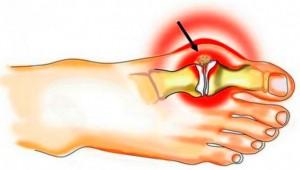 Kuidas eemaldada valu ja liigeste poletik