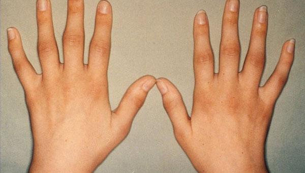 Kuidas kiiresti eemaldada sormede liigeste poletik Geranium liigesest valu