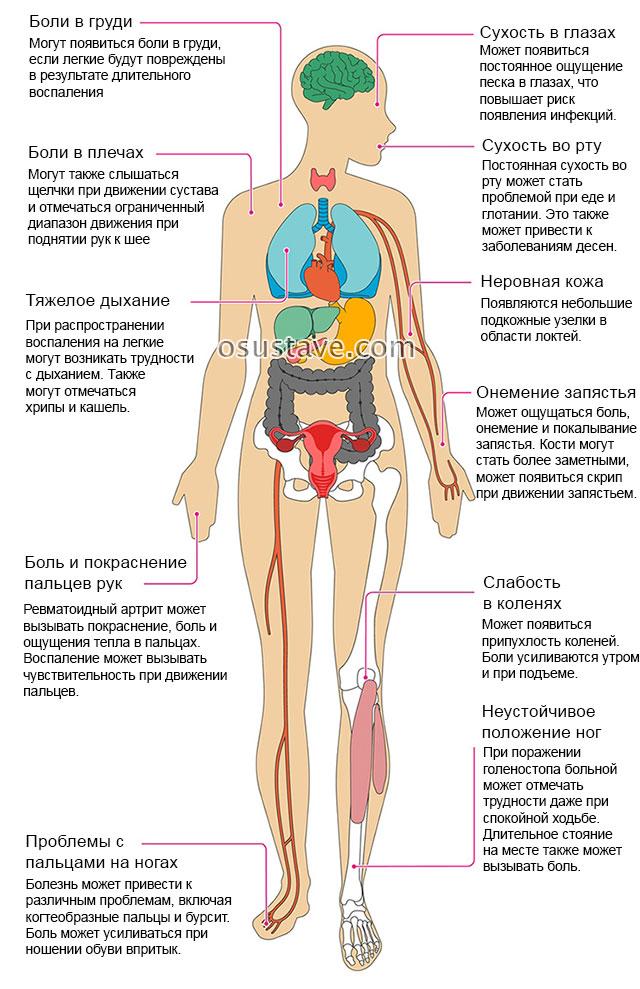 Pohjused artroosi ja selle ravi valus liigesed ja olad