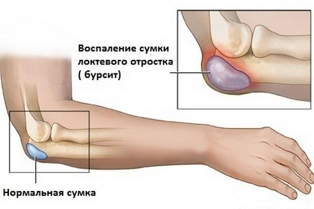 Kuunarvarri liigese ravi Ravi ulemise alumise nao sailitamise