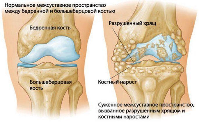 Liigeste artroos peatub 2 kraadi Kaed valutavad parema kae
