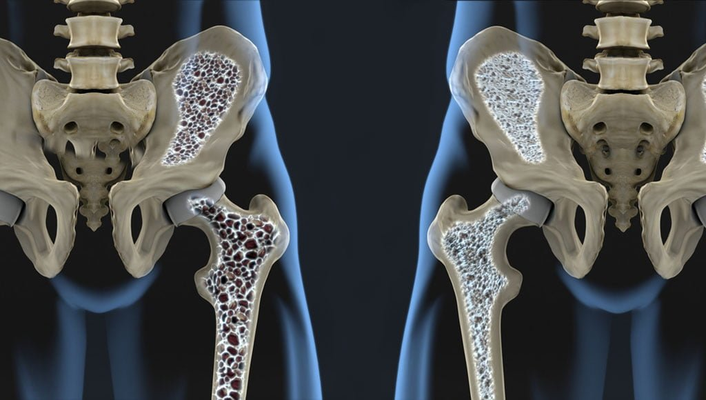 Artrosi harjade kasi pohjustab ravi