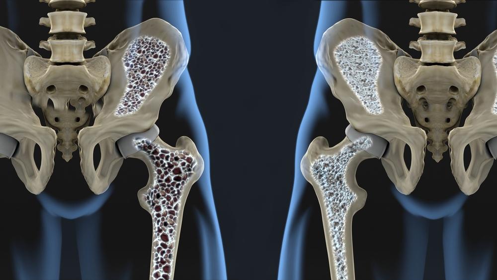 Miks haiget liigesepintslid