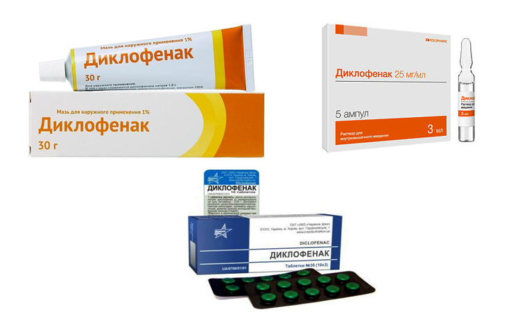 Mis on liigeste salvi voi tablettide jaoks parem Sustav 2 kraadi artroos