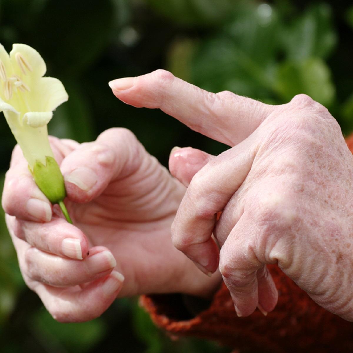 Artriit kae muhke sormede Chasts haiget kate harjade liigesed