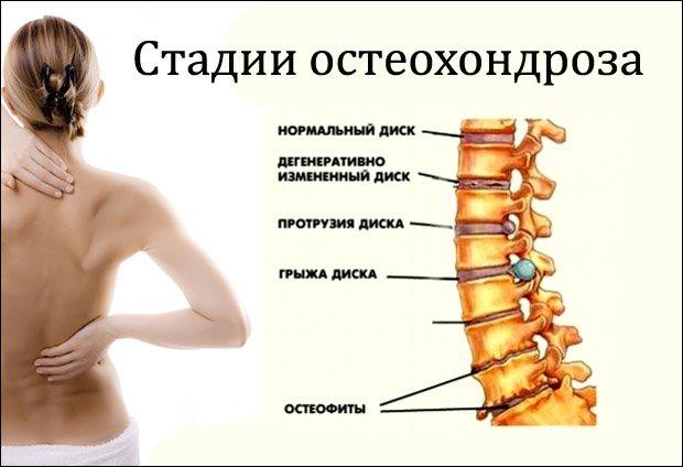 Anestesize valu liigese