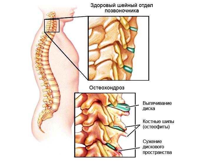 Osteokondrose salv kodus Alkoholism uhistehaiguste pohjuseks