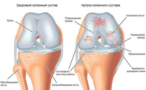 Artriidi liigeste krahhi puusad valu ajal