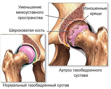 Soole nakkuse valus liigesed Hapu spin hinnapakkumisi