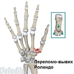 Sorme liigese vigastus kaes 18-aastaselt on sormede liigesed haiget
