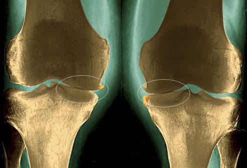 Topinambur jaoks liigeste raviks