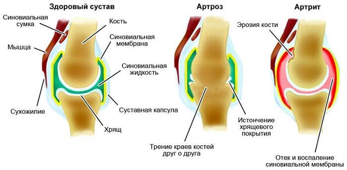 Pohjused liigesevalu ja ravi Liigeste loopia artroos