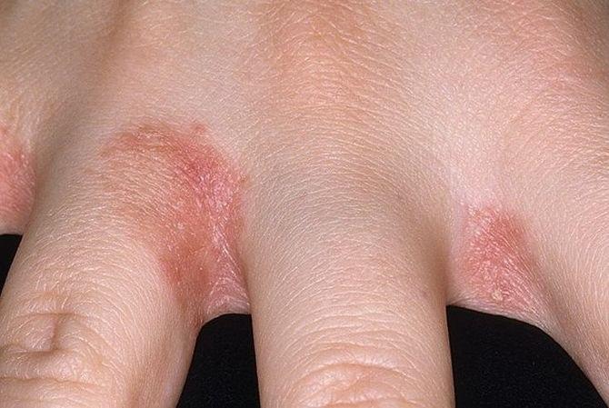 Valus sormede harja vahel Gouty koonuste tootlemine liigestele